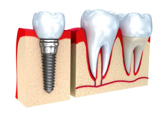 Zubní implantát