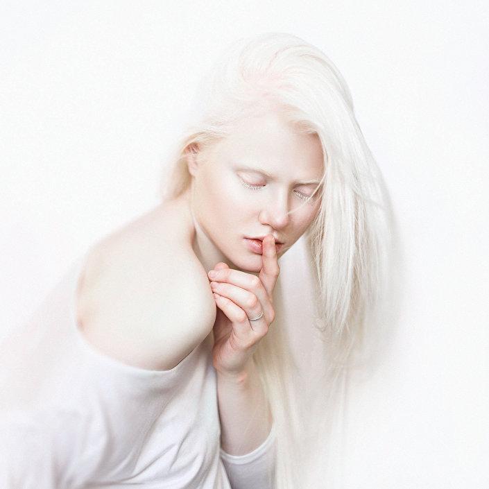 Albinismus