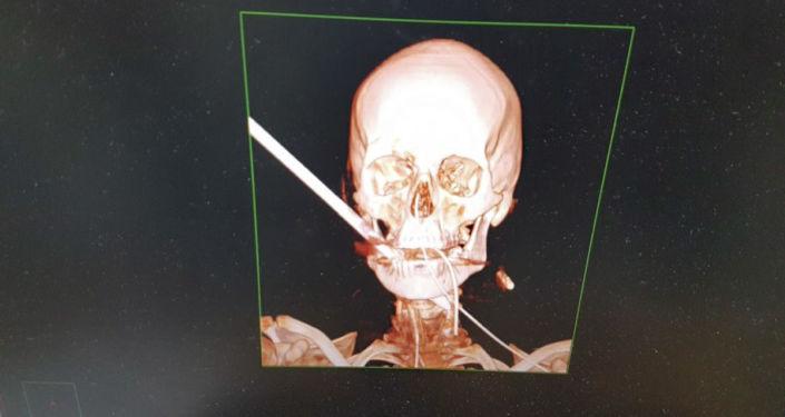 Snímek izraelského muže, kterému obličej prorazila střela
