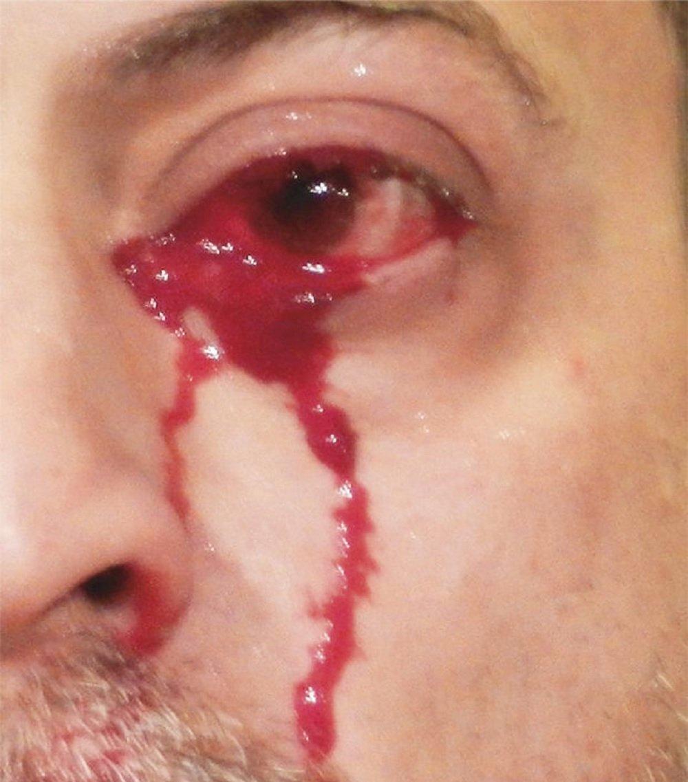 Muž vyděsil lékaře, když nepřetržitě plakal krev po dobu jedné hodiny