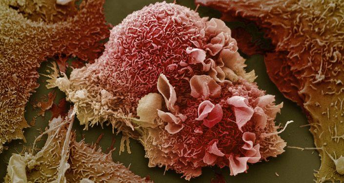 Plíce zasažené rakovinou