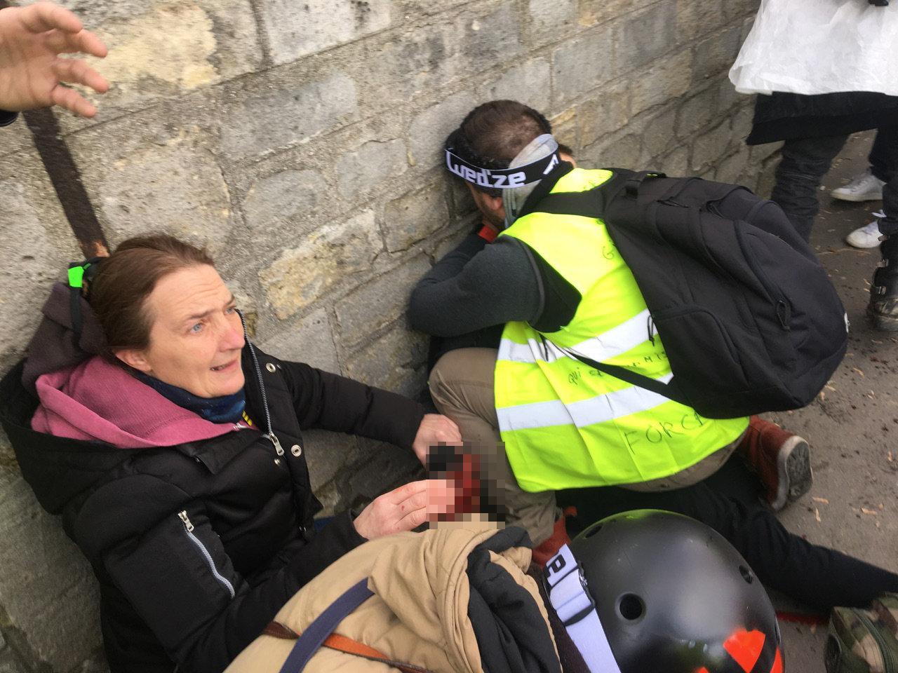 Muži utrhl ruku granát během demonstrace žlutých vest v Paříži